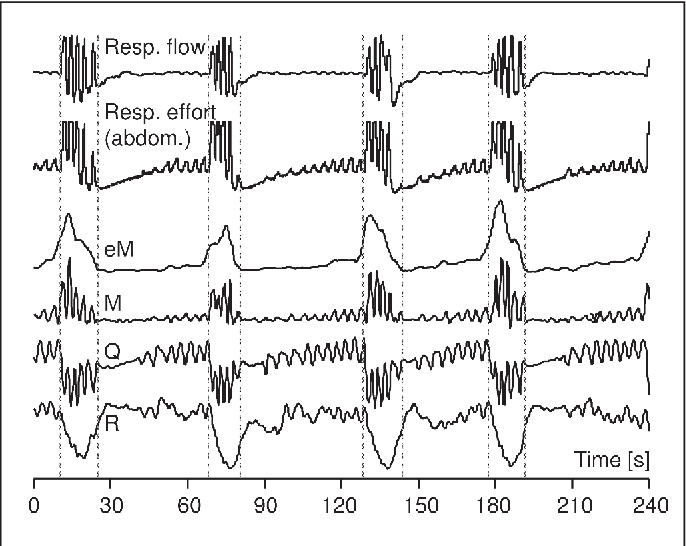 Figure 1 Exemplary time courses of derived time series eM, M, Q and R (four lower traces) and respiratory measurements in the
