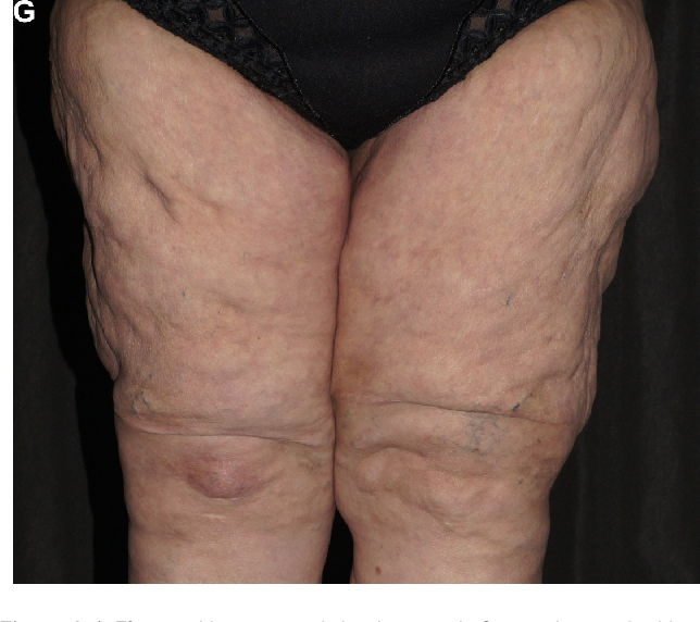 Figure 1 from Treatment of elderly patients with advanced lipedema