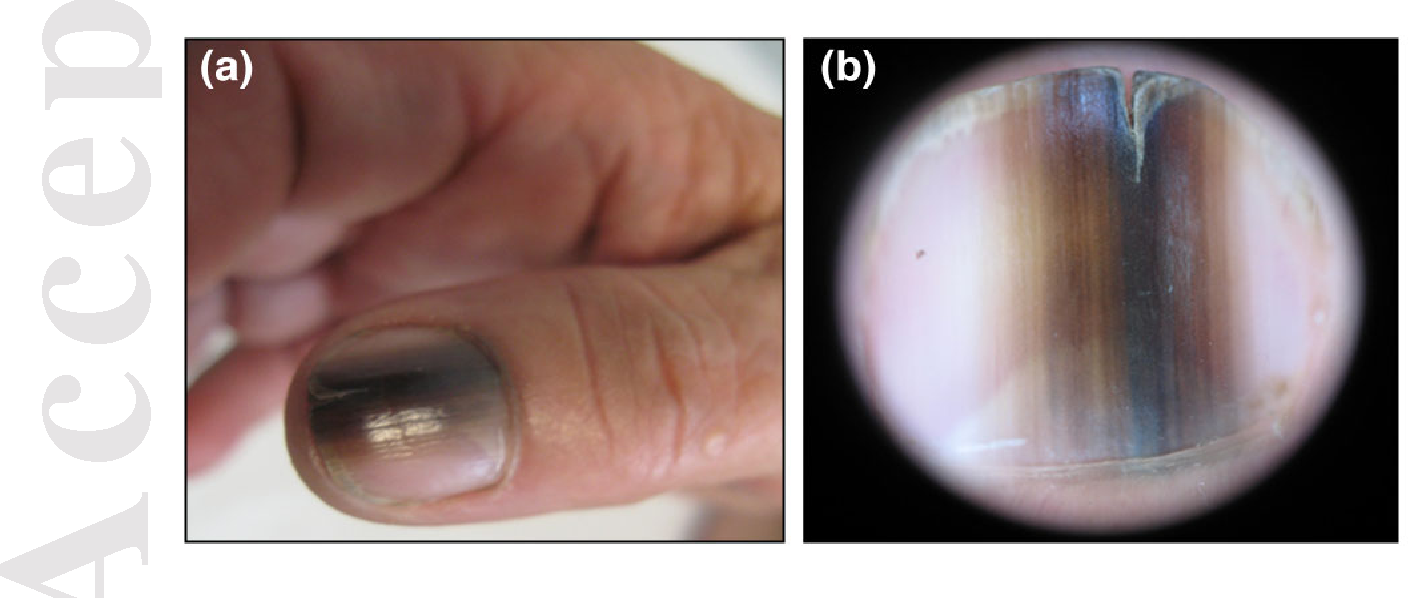 Clinical and dermoscopic clues to differentiate pigmented nail bands ...