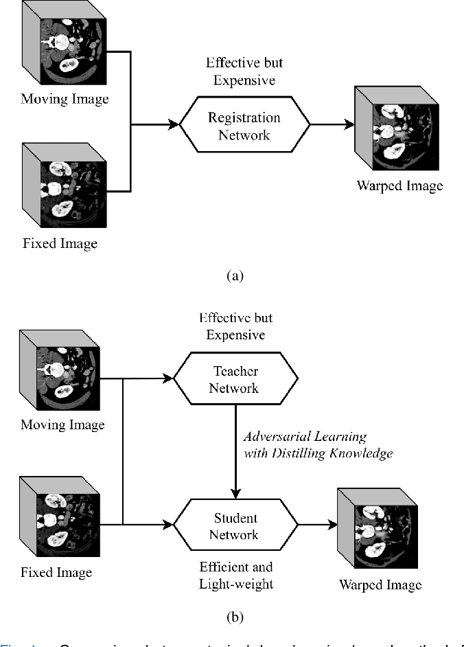 Figure 1 for Light-weight Deformable Registration using Adversarial Learning with Distilling Knowledge
