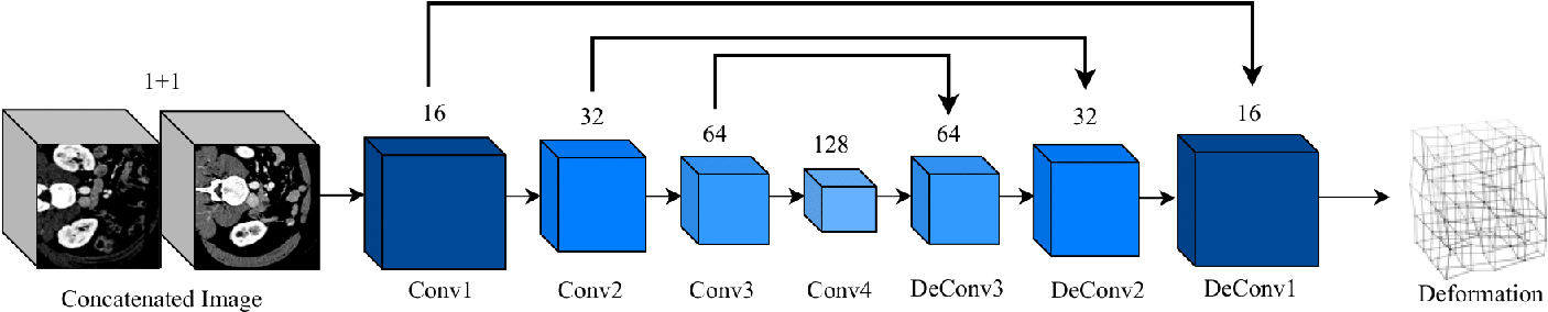 Figure 3 for Light-weight Deformable Registration using Adversarial Learning with Distilling Knowledge