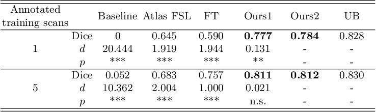 Figure 4 for Knowledge Transfer for Few-shot Segmentation of Novel White Matter Tracts