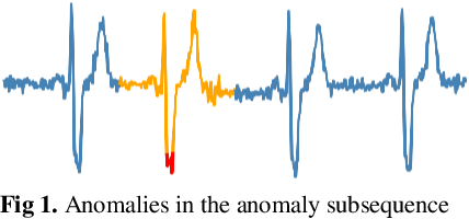 Figure 1 for Reconstruct Anomaly to Normal: Adversarial Learned and Latent Vector-constrained Autoencoder for Time-series Anomaly Detection