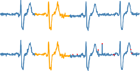 Figure 3 for Reconstruct Anomaly to Normal: Adversarial Learned and Latent Vector-constrained Autoencoder for Time-series Anomaly Detection