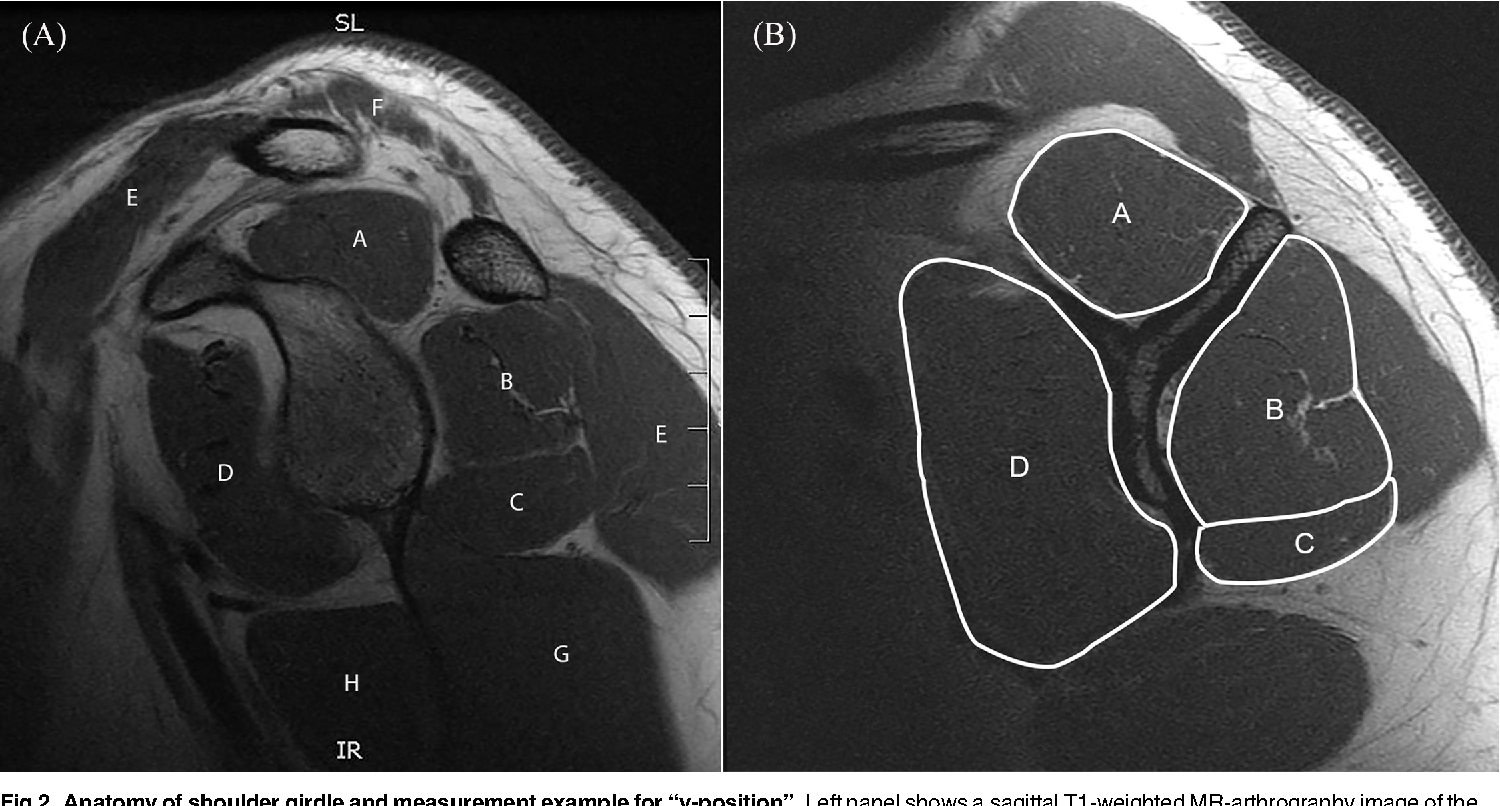 Cross-Sectional Area of the Rotator Cuff Muscles in MRI – Is there ...