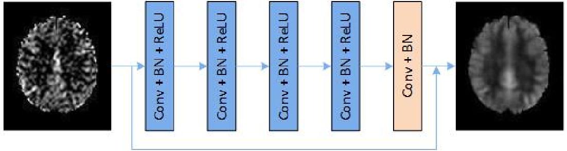 Figure 1 for Denoising Arterial Spin Labeling Cerebral Blood Flow Images Using Deep Learning