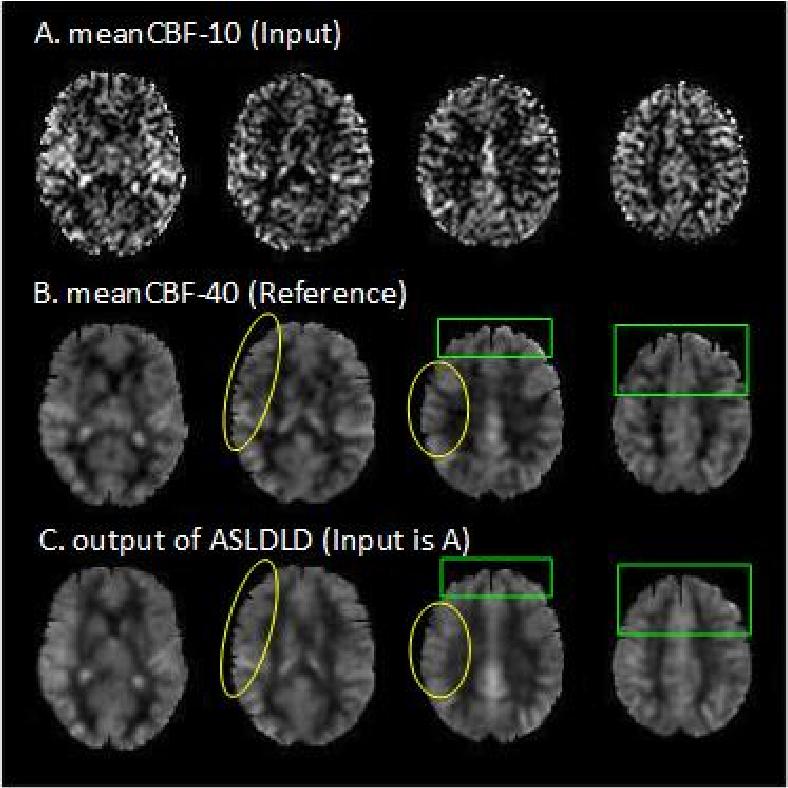 Figure 2 for Denoising Arterial Spin Labeling Cerebral Blood Flow Images Using Deep Learning