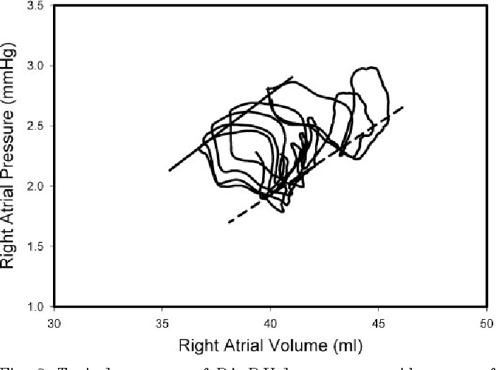 Impact Of Pericardial Restraint On Right Atrial Mechanics During