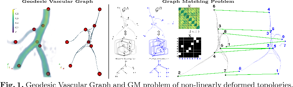 Figure 1 for Elastic Registration of Geodesic Vascular Graphs