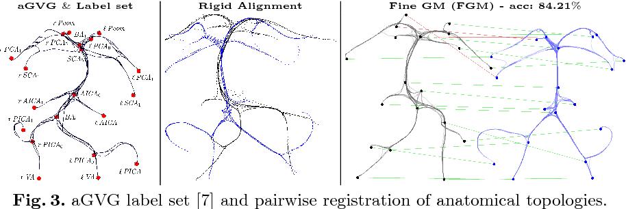 Figure 3 for Elastic Registration of Geodesic Vascular Graphs