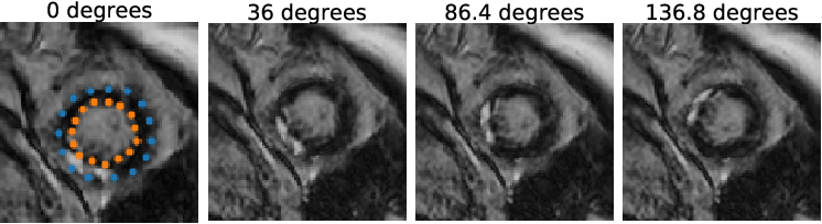 Figure 2 for Combining Multi-Sequence and Synthetic Images for Improved Segmentation of Late Gadolinium Enhancement Cardiac MRI