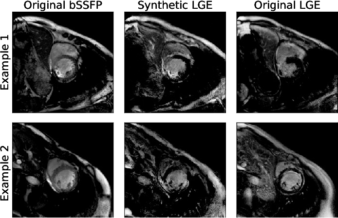 Figure 3 for Combining Multi-Sequence and Synthetic Images for Improved Segmentation of Late Gadolinium Enhancement Cardiac MRI