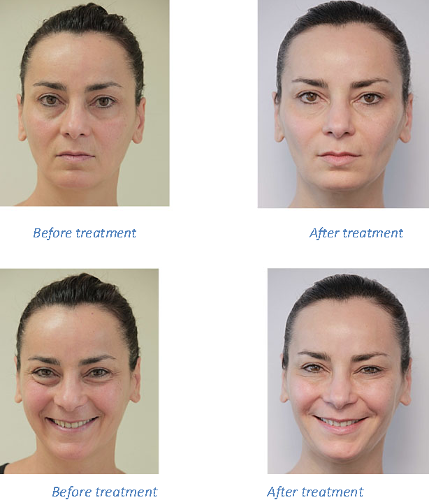 Figure 16 from Facial dynamics and emotional expressions in