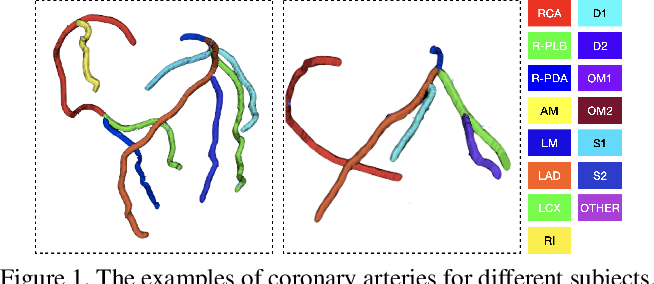 Figure 1 for CPR-GCN: Conditional Partial-Residual Graph Convolutional Network in Automated Anatomical Labeling of Coronary Arteries