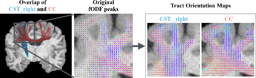 Figure 1 for Tract orientation mapping for bundle-specific tractography