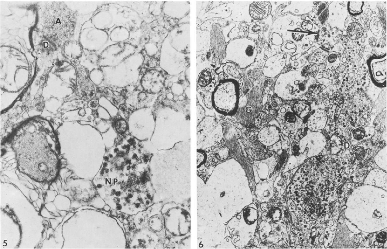 Synaptic morphology in the human locus ceruleus - Semantic Scholar