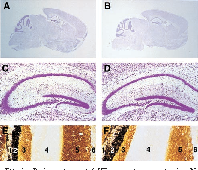 Figure 1 From Perturbed Dentate Gyrus Function In Serotonin 5 Ht2c