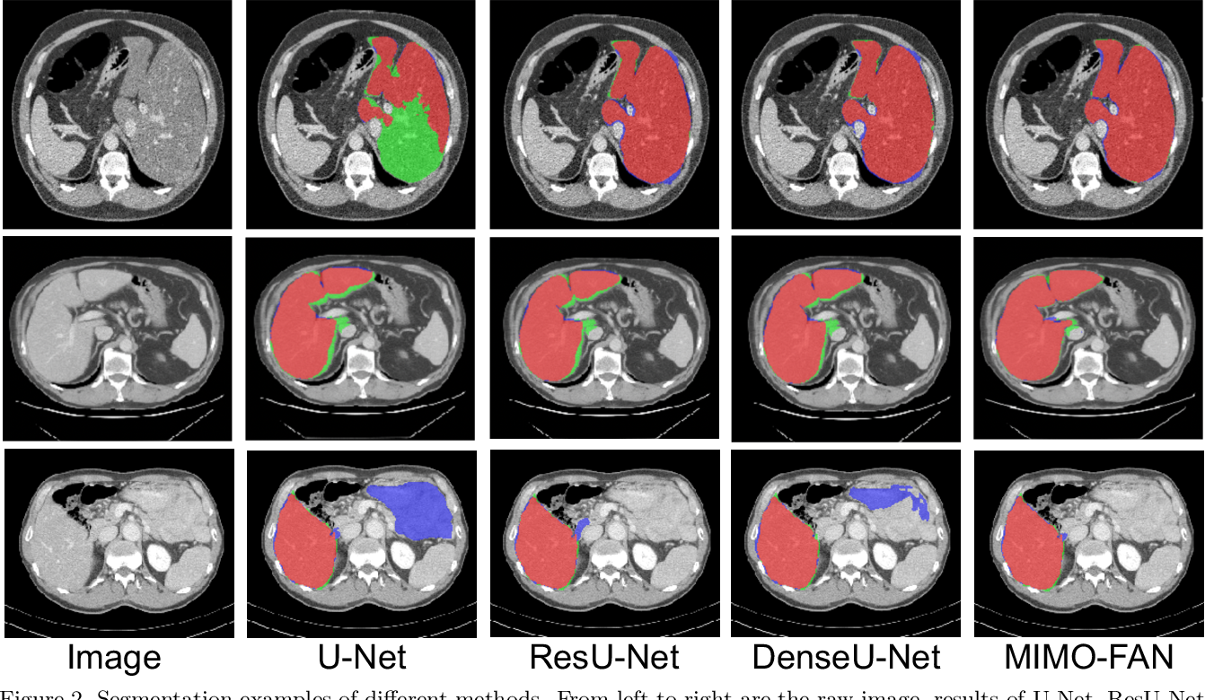 Figure 4 for Unified Multi-scale Feature Abstraction for Medical Image Segmentation