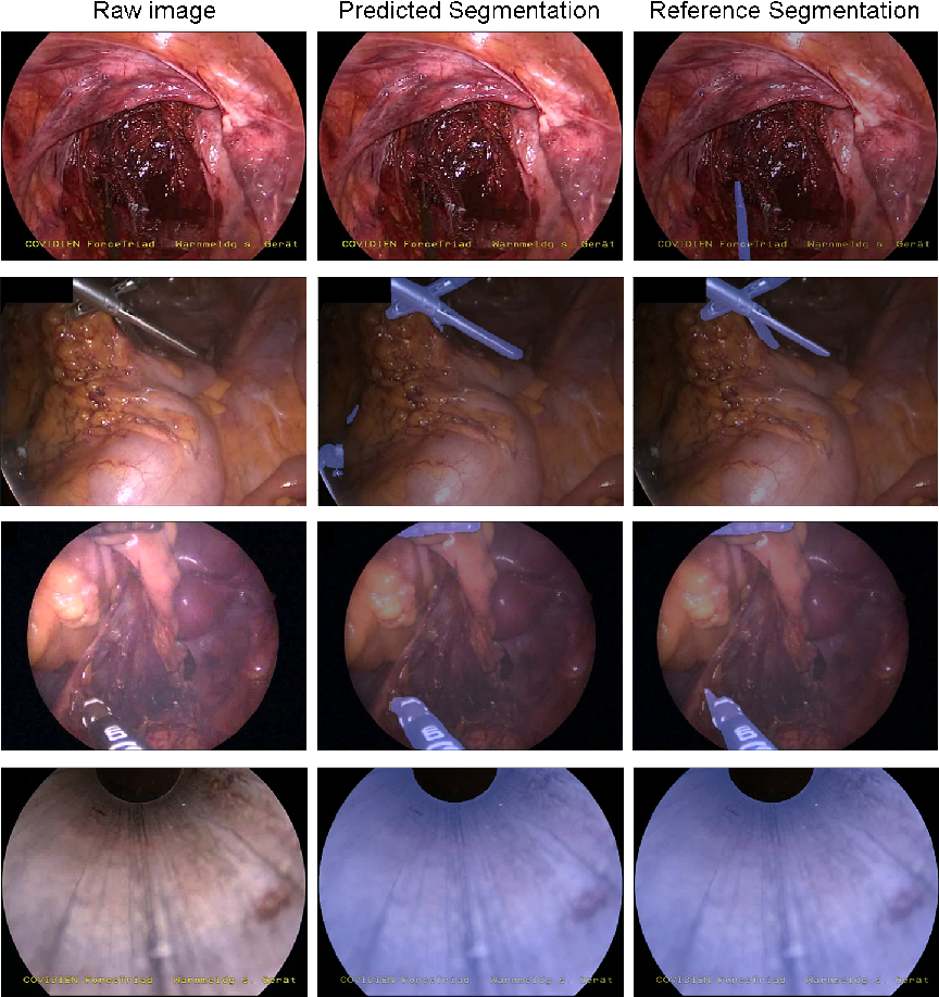 Figure 2 for OR-UNet: an Optimized Robust Residual U-Net for Instrument Segmentation in Endoscopic Images