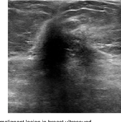 Figure 1 for Automated Segmentation of Lesions in Ultrasound Using Semi-pixel-wise Cycle Generative Adversarial Nets