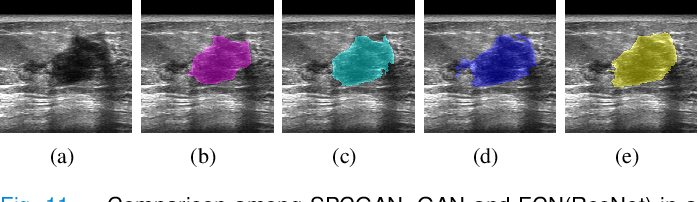 Figure 3 for Automated Segmentation of Lesions in Ultrasound Using Semi-pixel-wise Cycle Generative Adversarial Nets