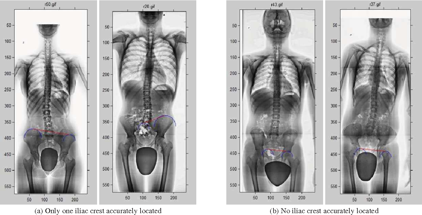 A Method For Locating The Iliac Crests Based On The Fuzzy Hough