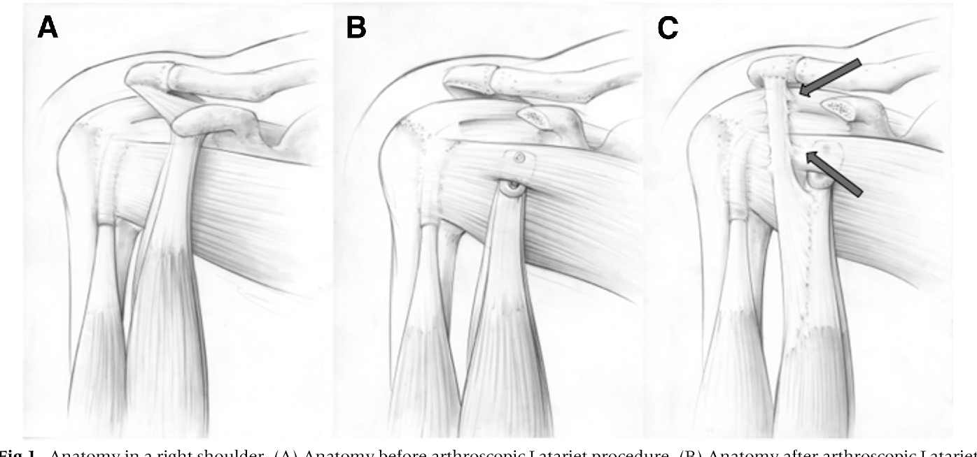 Identification of a Remodeled Neo-tendon After Arthroscopic Latarjet ...