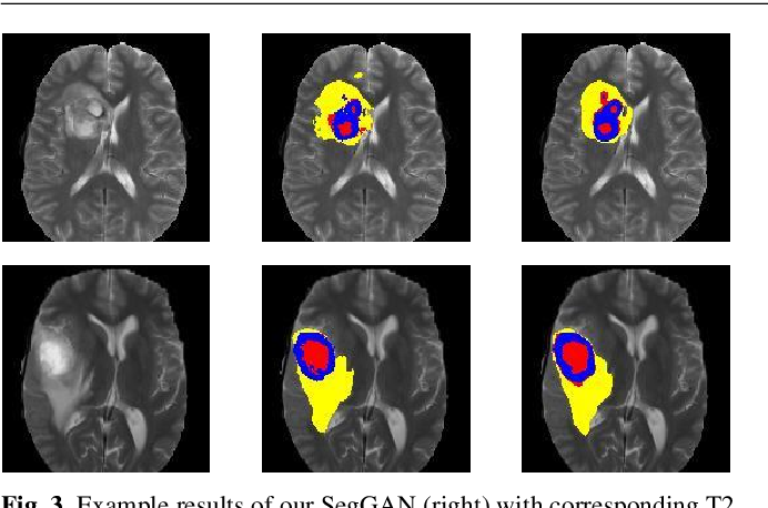 Figure 4 for SegAN: Adversarial Network with Multi-scale $L_1$ Loss for Medical Image Segmentation