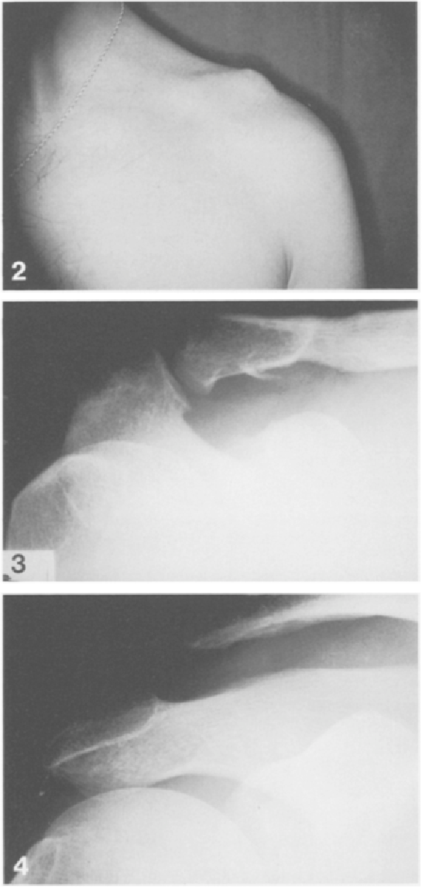 Fig. 2. An athlete with a residual acromioclavicular dislocation at follow-up, despite initial anatomical reduction after surgery