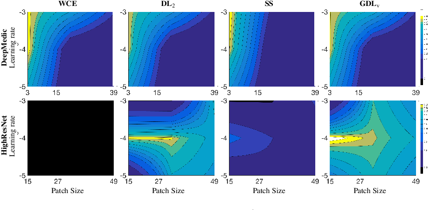 Figure 4 for Generalised Dice overlap as a deep learning loss function for highly unbalanced segmentations
