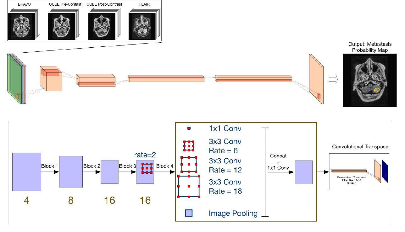 Figure 2 for Handling Missing MRI Input Data in Deep Learning Segmentation of Brain Metastases: A Multi-Center Study