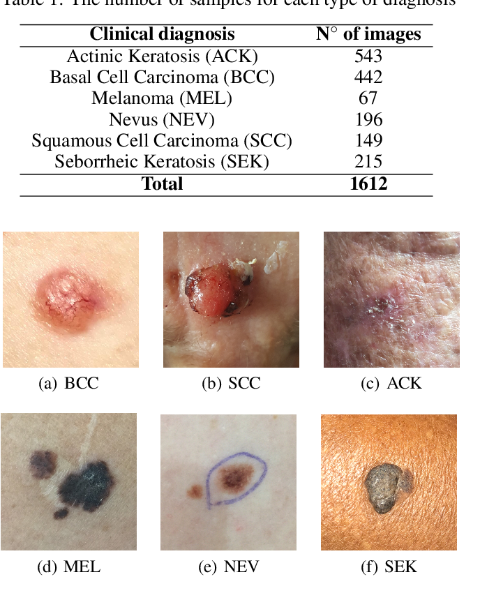 Figure 1 for The impact of patient clinical information on automated skin cancer detection