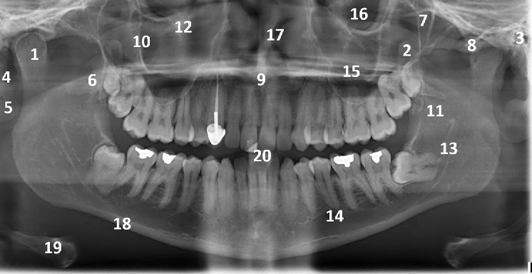 Ure 19 From Oral And Maxillofacial Anatomy Semantic Scholar. A Labeled Panoramic Radiograph Showing The Right Mandibular Condyle 1. Wiring. Mouth Diagram Labeled Radiograph At Scoala.co