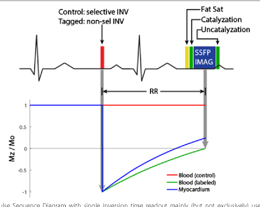 Figure 5 from myocardial arterial spin labeling semantic scholar 5 ecg gated fair pulse sequence diagram with single inversion time readout mainly ccuart Choice Image