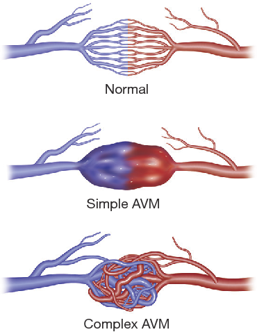 Figure 1 from Pulmonary arteriovenous malformations ...