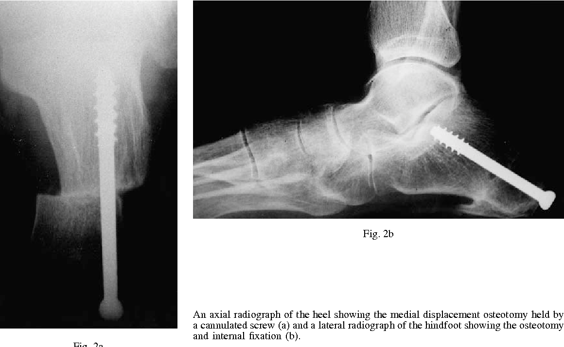 Calcaneal Osteotomy And Transfer Of The Tendon Of Flexor Digitorum
