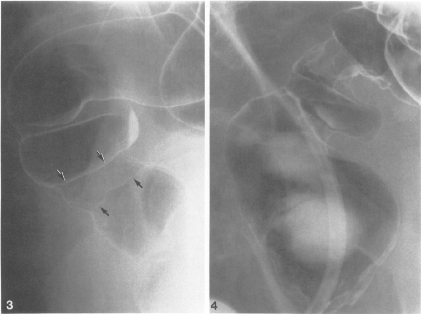 Figure 3 from Solitary rectal ulcer syndrome: A radiologic