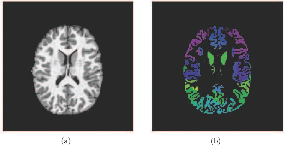 Figure 3 for A Combined Deep Learning-Gradient Boosting Machine Framework for Fluid Intelligence Prediction