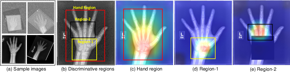 Figure 1 for Attention-Guided Discriminative Region Localization for Bone Age Assessment