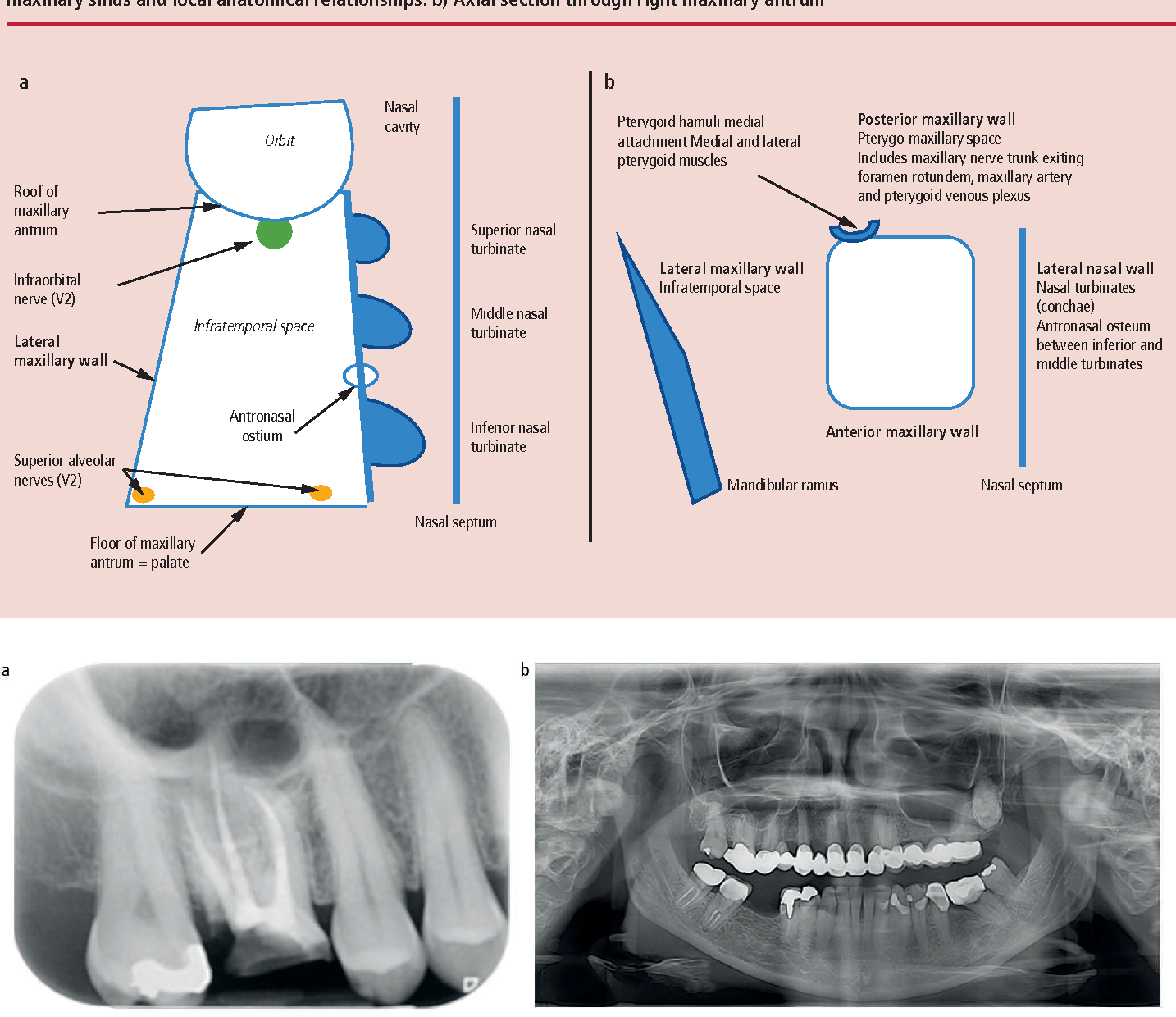 Figure 2 from Oral surgery II: Part 2. The maxillary sinus (antrum ...