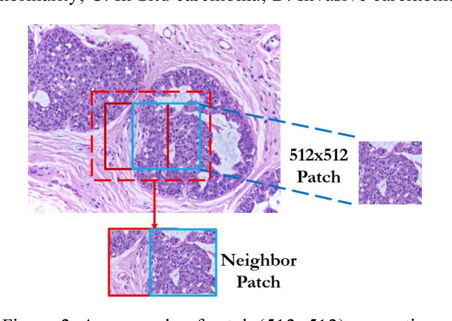 Figure 3 for Active Learning for Breast Cancer Identification