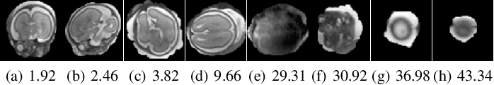 Figure 3 for 3D Reconstruction in Canonical Co-ordinate Space from Arbitrarily Oriented 2D Images