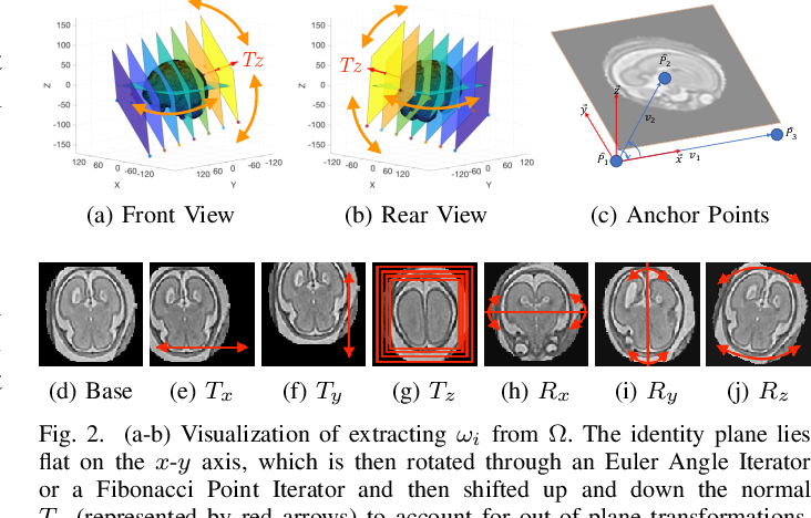 Figure 4 for 3D Reconstruction in Canonical Co-ordinate Space from Arbitrarily Oriented 2D Images