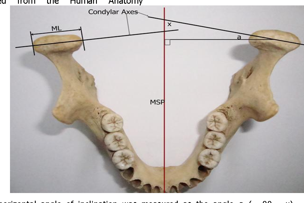 Horizontal Angle of Inclination of the Mandibular Condyle in a ...