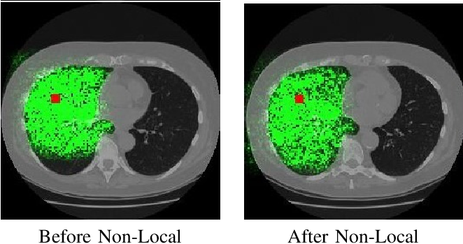 Figure 3 for Relational Modeling for Robust and Efficient Pulmonary Lobe Segmentation in CT Scans