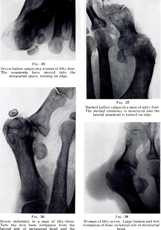 Figure 3 from The anatomy of hallux valgus. - Semantic Scholar