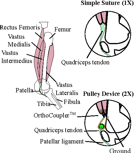 Figure 3 From A Passive Implant That Scales Muscle Force In Knee
