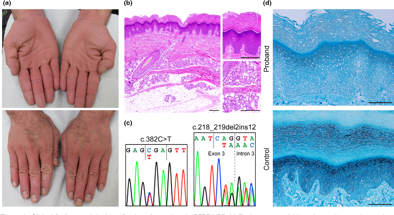 Novel nonsense mutation in SERPINB7 and the treatment of foot odor