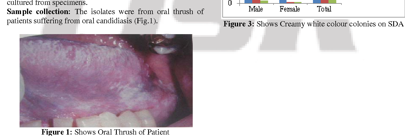 Incidence of oral adult thrush