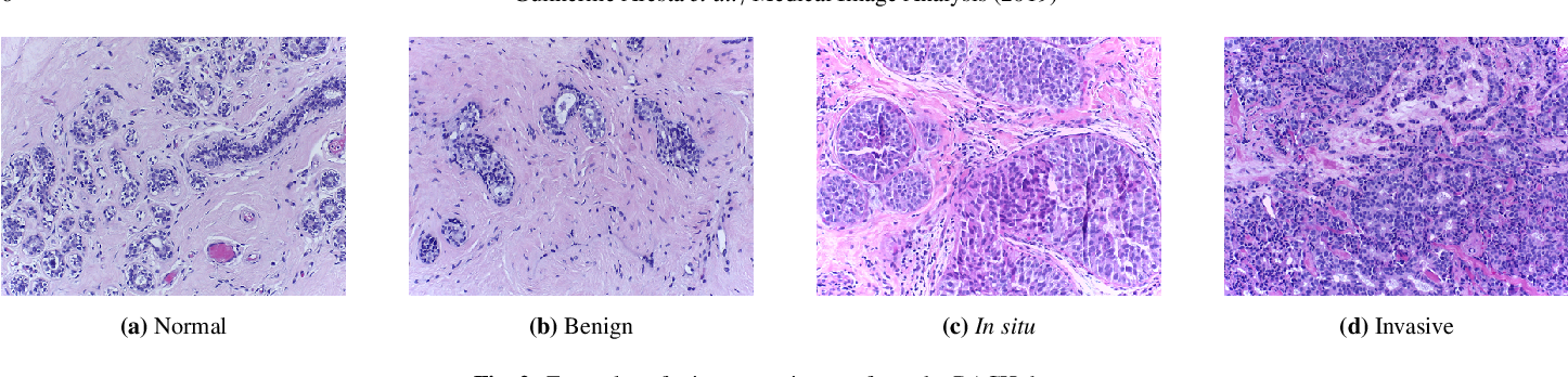 Figure 3 for BACH: Grand Challenge on Breast Cancer Histology Images